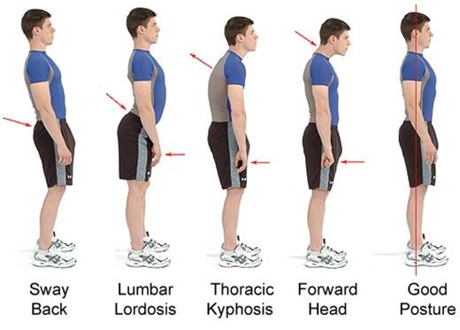 Cách tốt nhất để tăng chiều cao ngay lập tức? Đứng thẳng lưng.