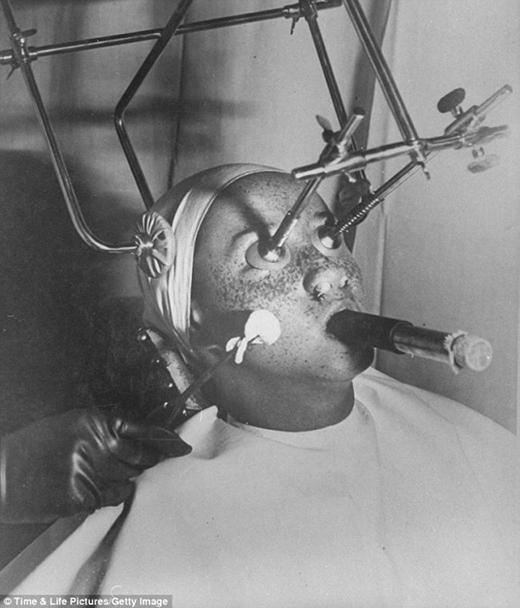 Người phụ nữ này đang điều trị tàn nhang (những năm 1930)