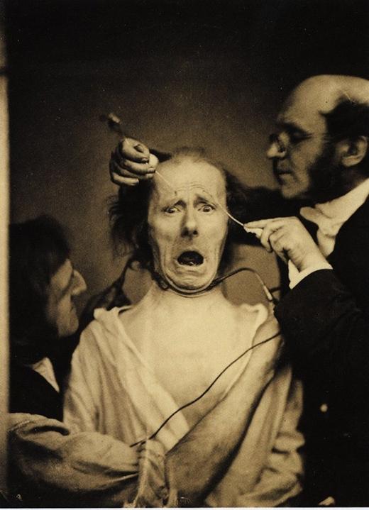 Nhà thần kinh học Neurologist Duchenne de Boulogne đang nghiên cứu cơ mặt của một người đàn ông.