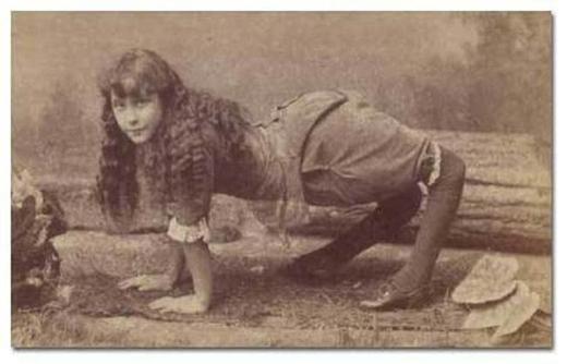 Ella Harper, người bị rối loạn làm suy yếu dây chằng ở đầu gối.