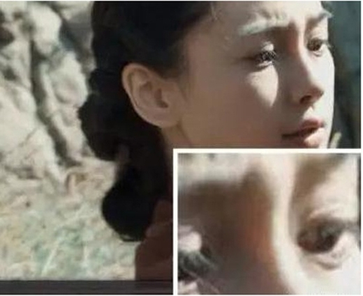 AngelaBaby lộ sụn silicon ở mũi