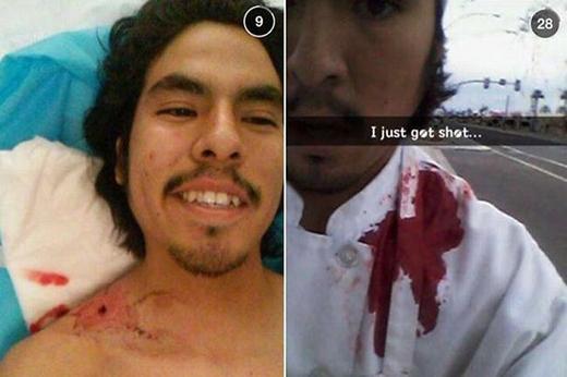 Martinelà một nhân viênnhà hàng tạithành phố Mesa, Arizona. Tuy bị một tên cướp bắn một phát vào người nhưngMartinez không hoảng loạn chút nào. Anh chàng thậm chí còn chụp lại một bức ảnh tự sướng để khoe với bạn bè.