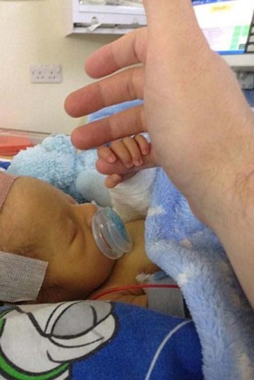 Cậu bé 15 tháng tuổi trải qua 9 ca phẫu thuật và 4 lần đột quỵ