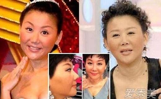 Nhiều cư dân mạng cho rằng, thực tế do thẩm mỹ, Lam Tâm Mi đang đối diện với gương mặt phù nề, giả tạo.