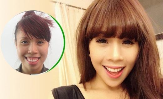 Nguyễn Thị Lan trước và sau khi phẫu thuật.