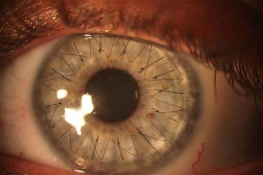 38 hình ảnh kỳ thú khiến bạn nhìn không chớp mắt