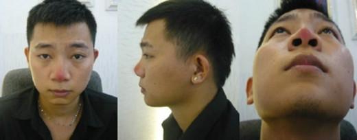 Hình ảnh của Trần Thanh Hải khi chỉnh sửa mũi thất bại