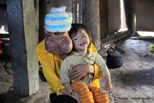 Bà Lý Mùi Xiên có gương mặt kinh dị do hai khối u gây ra