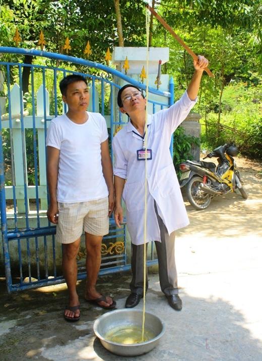 Con sán sơ mít dài hơn 12 mét trong người anh Tuấn