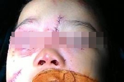 Bé T. bị chó cắn ở vùng mặt phải nhập viện cấp cứu