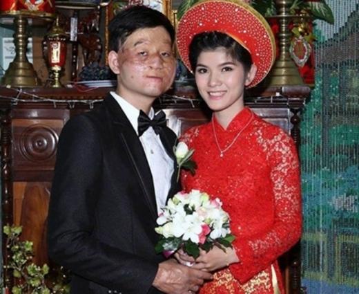 """Đầu năm 2014, Trần Lâm, sinh năm 1991 và Thu Hiền sinh năm 1993 đã chính thức kết hôn. Khi những hình ảnh đám cưới của cặp đôi này được chia sẻ trên mạng xã hội, mọi người đều gọi chuyện tình của cả hai là """"chuyện tình cổ tích"""". Cũng nhiều người gọi cả hai là cặp đôi """"chồng xấu – vợ xinh"""", vì sự khác nhau của bề ngoài."""