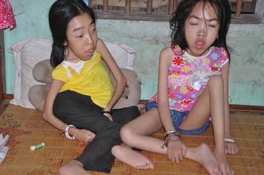 Hai cô con gái của cô Xuân bị bệnh có ngoại hình giống rắn. Ảnh: DT