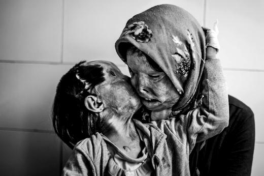 Vòng tay trìu mến mà hai mẹ con bị người chồng/người cha của họ tạt axit dành cho nhau.