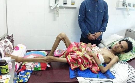 Tưởng như cái chết đã cận kề với Thái Lan Viên khi anh chỉ còn da bọc xương.