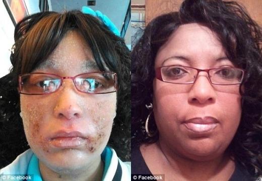 CôShanyna Isom lúc trước (bên phải) khi mắc căn bệnh kỳ lạ này.