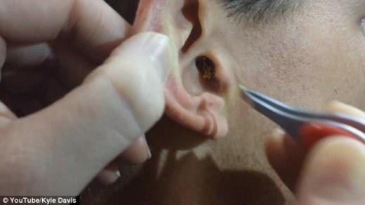 Rợn người với quá trình lấy cục ráy tai to không thể tin được