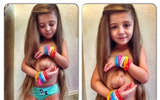 Kinh ngạc với bé gái 5 tuổi có trái tim ngoài lồng ngực