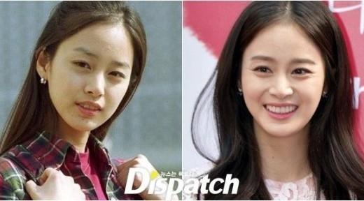 """Kim Tae Hee luôn được biết đến như một """"ngọc nữ"""" hoàn hảo của làng giải trí xứ Hàn. Dù vậy, nữ diễn viên cũng thừa nhận bản thân từng nhờ đến thẩm mỹ niềng răng để sở hữu nụ cười tỏa nắng như hiện nay."""