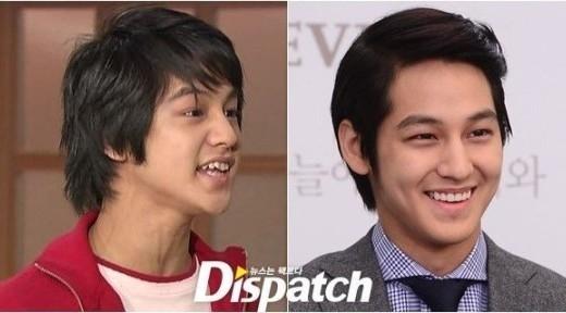 """Để sở hữu hình ảnh """"hoàng tử kẹo ngọt"""" như hiện nay cùng nụ cười khiến các fan """"tan chảy"""", Kim Bum phải trải qua quá trình chỉnh răng """"lởm chởm"""" khi vừa mới vào nghề."""