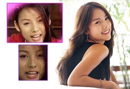 Nổi tiếng với nụ cười hở lợi tươi tắn, ít ai biết được trước đây nữ hoàng gợi cảm Lee Hyori từng phải chịu đựng hàm răng lởm chởm xấu xí.