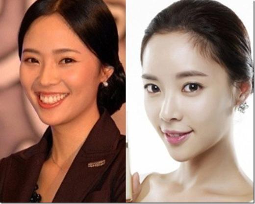 Hwang Jung Eum như lột xác hoàn toàn với hàm răng được chỉnh sửa, giúp gương mặt nữ diễn viên thêm phần thon gọn.