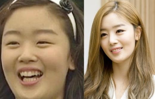 Dù không thừa nhận dao kéo nhưng Sunhwa (Secret) cũng khó có thể giải thích về sự thay đổi đáng kinh ngạc trên gương mặt mình, nổi bật nhất vẫn là hàm răng lởm chởm mất thẩm mỹ.