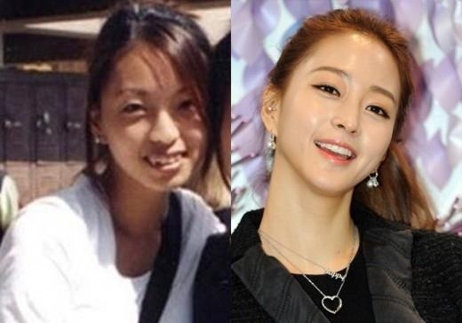 """Dù một mực khẳng định nhan sắc tự nhiên nhưng nhìn vào hình ảnh ngày xưa, ít ai có thể nhận ra đây chính là nữ diễn viên khả ái Han Ye Seul. Cô nàng chỉnh sửa rất nhiều nét trên gương mặt trong đó có hàm răng """"lởm chởm"""" và mọc vô trật tự."""