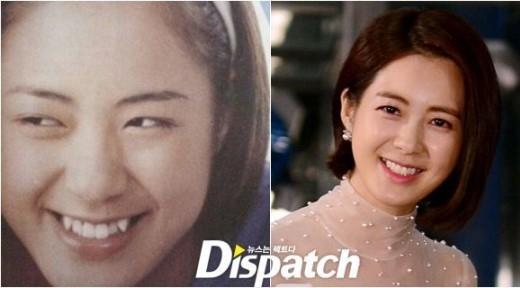 Nữ diễn viên Lee Ye Won hy sinh hai chiếc răng khểnh để đổi lại hàm răng thẳng tắp giúp cô nàng thêm tự tin mỗi khi xuất hiện trước công chúng.