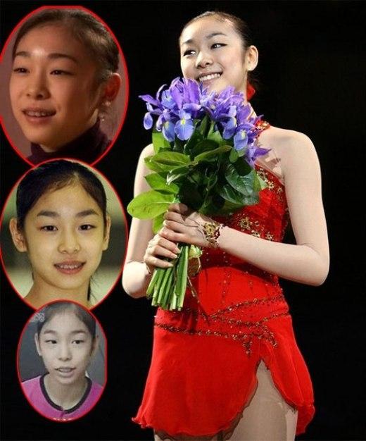 Thuở bé, quốc bảo Kim Yuna cũng không tránh khỏi vấn đề răng miệng. Hàm răng mất trật tự khiến cô nàng kém sắc hơn hẳn.