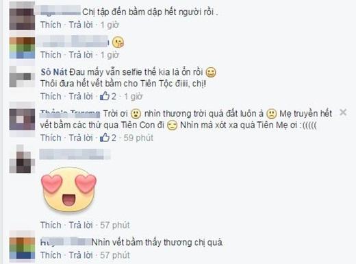 Fan lo lắng trước hình ảnh bầm dập của Tóc Tiên - Tin sao Viet - Tin tuc sao Viet - Scandal sao Viet - Tin tuc cua Sao - Tin cua Sao