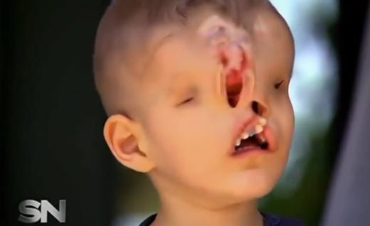 Sinh ra với dị tật bẩm sinh, cậu bé 3 tuổi người Morroco,Yahya Jabaly không có mắt, mũi và hàm trên