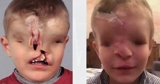 Dù còn phải trải qua ca phẫu thuật chỉnh hình mũi và lắp mắt giả, nhưng giờ đây, mọi thứ có vẻ có nhiều hy vọng hơn đối với Yahya