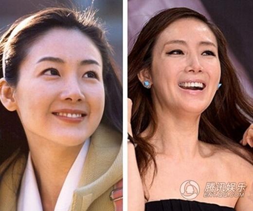 Choi Ji Woo: Vẻ đẹp của cô bị đặt nghi vấn vì sự xuống dốc trầm trọng.