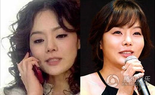 Chae Rim ngày càng trở thành người khác với đôi mắt cứng đờ, mũi lộ độn và biểu cảm như sáp.