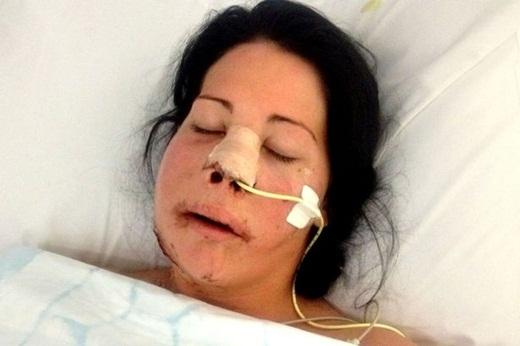 Cảm động người mẹ trẻ chấp nhận cắt bỏ một nửa khuôn mặt vì con