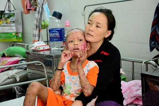 Đau xót cảnh người mẹ ôm con khi căn bệnh nặng hành hạ