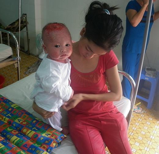 Hình ảnh chị Nga bên đứa con trai bé nhỏ đang bị căn bệnh quái ác hành hạ từng ngày tại Bệnh viện Da liễu TP.HCM