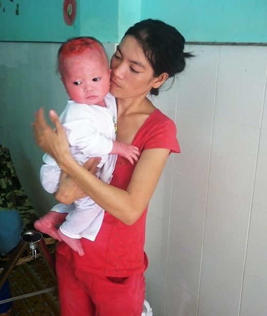 Rớt nước mắt trước hoàn cảnh của em bé mắc bệnh hiểm nghèo