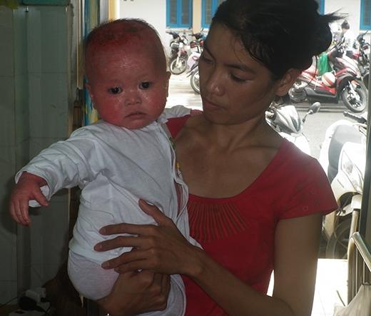 Chứng kiến con trai bị bệnh, chị Nga rất đau xót nhưng do không có tiền nên cũng đành bất lực.