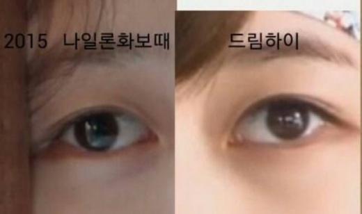 Suzy bị tung bằng chứng thẩm mỹ mắt