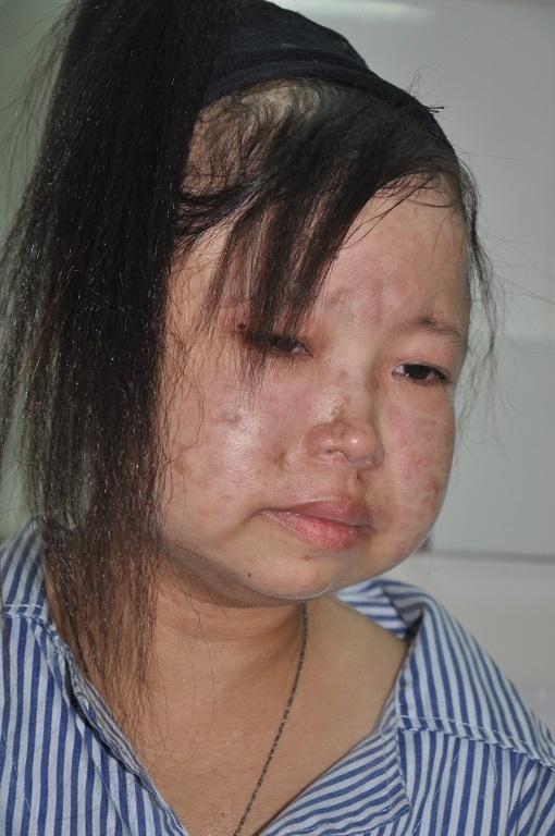 Cô bé Thắm tội nghiệp mắc căn bệnh quái ác. Ảnh: DT