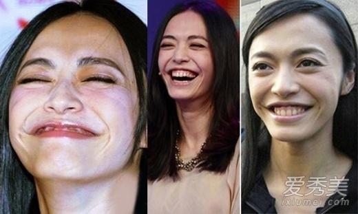 Diêu Thần với vẻ đẹp ngọt ngào ấy bây giờ khác hẳn. Nụ cười đặc trưng của cô giờ khiến cô xấu hơn trước.