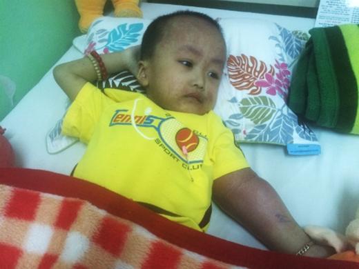 Sau gần 3 năm chống chọi căn bệnh quái ác, bé Huy đã qua đời để lại nhiều tiếc thương cho mọi người. Ảnh: VNE
