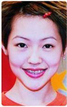 Mỹ nhân Hoa ngữ đổi đời nhờ sửa răng