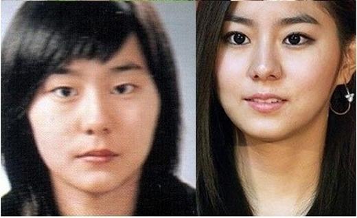 Vào năm 2012, thông qua chương trình Sangsang Plus, UEE cũng đã tiết lộ bí mật về đôi mắt của mình:Em chỉ làm một chút với đôi mắt của mình thôi.