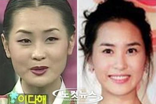 Sao Hàn nào can đảm thừa nhận phẫu thuật thẩm mĩ?