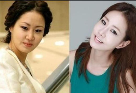 Nữ diễn viên tài năng Shin Eun Kyung cũng đã từng trải qua cuộc phẫu thuật xương hàm. Cuộc phẫu thuật này được biết khá nguy hiểm, có khả năng đe dọa đến tính mạng và cái giá hoàn toàn không hề nhỏ. Eun Kyung cho biết, cô đã rất quyết tâm thay đổi gương mặt mình để bớt đi một chút nam tính vốn có. Quyết định này không khác gì một cuộc phiêu lưu, thế nhưng cô không hề hối hận.