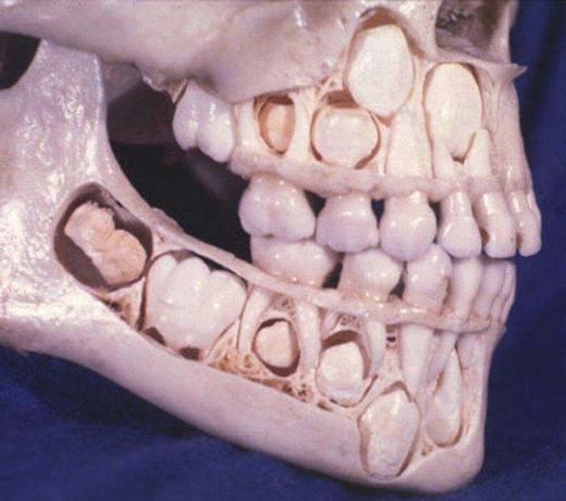 Vị trí của các răng trưởng thành (phía dưới) và răng sữa (phía trên). Khi thay răng, những chiếc răng phía dưới sẽ dần thay thế răng sữa.