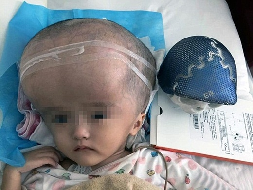 Bé gái đầu tiên trên thế giới được ghép sọ bằng công nghệ in 3D