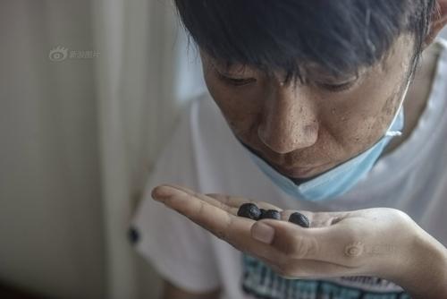 Hiện ông Bình còn làm thêm thuốc đông y cho con trai uống với hi vọng nhanh hết bệnh.